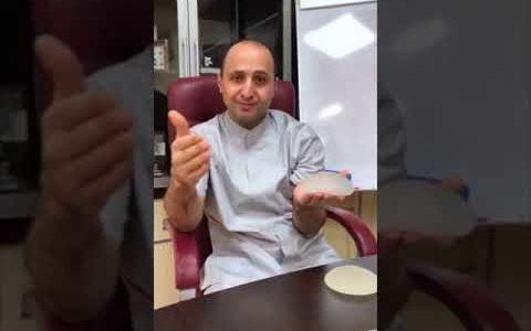 ДЛЯ ЧЕГО НУЖЕН ЧИП В ИМПЛАНТАХ? Доктор Карапетян, Санкт-Петербург